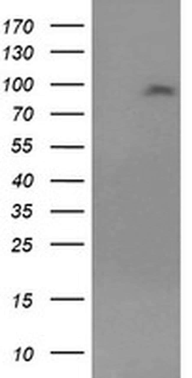 LGR5 Mouse anti-Human, Clone: OTI7H7, liquid, TrueMAB  100 µL; Unconjugated