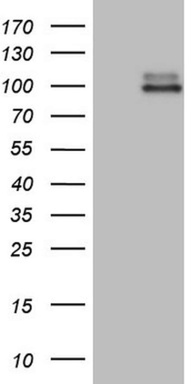 LGR5 Mouse anti-Human, Clone: OTI11C2, lyophilized, TrueMAB  100 µg;