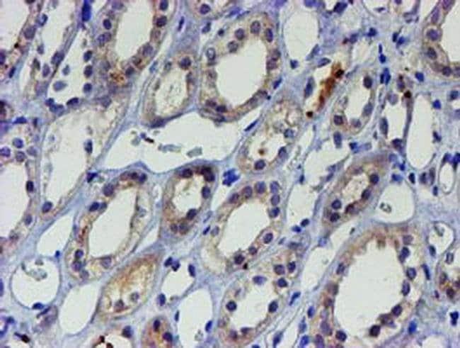 LHX1 Mouse anti-Human, Clone: OTI2D5, liquid, TrueMAB  100 µL; Unconjugated