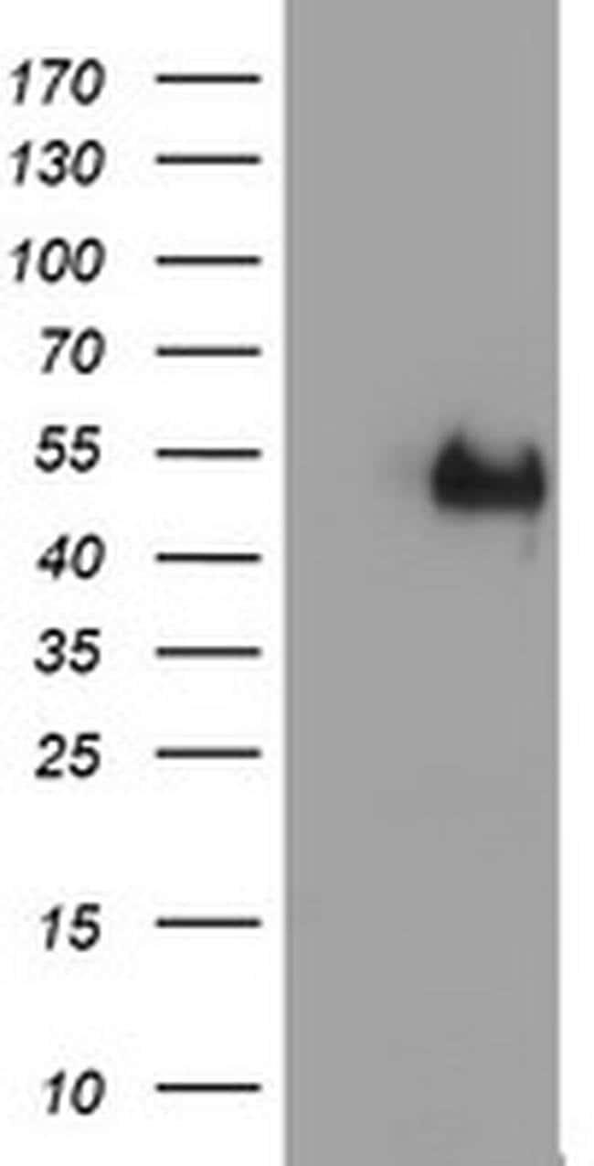 LHX1 Mouse anti-Human, Clone: OTI2A4, liquid, TrueMAB  100 µL; Unconjugated