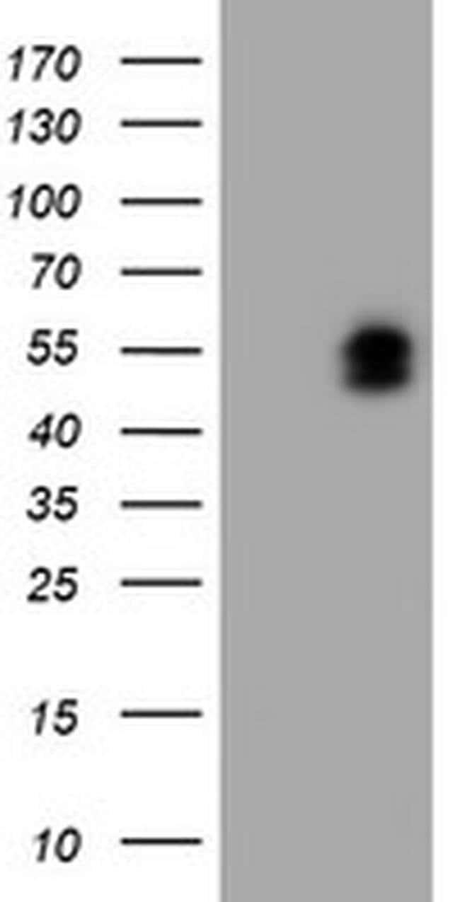 LHX1 Mouse anti-Human, Clone: OTI2D3, liquid, TrueMAB  100 µL; Unconjugated