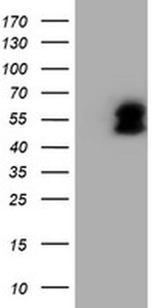 LHX1 Mouse anti-Human, Clone: OTI2B4, liquid, TrueMAB  100 µL; Unconjugated