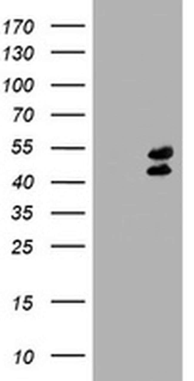 LHX1 Mouse anti-Human, Clone: OTI1D1, liquid, TrueMAB  100 µL; Unconjugated