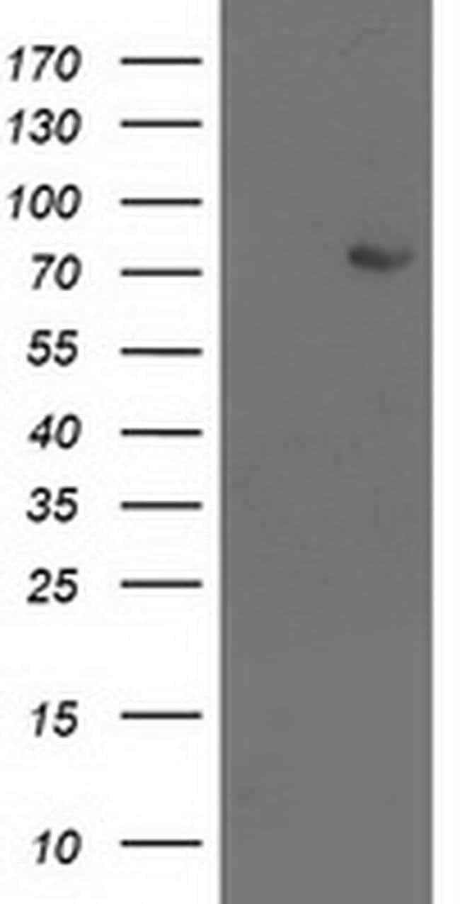 LIMK1 Mouse anti-Human, Clone: OTI6A7, liquid, TrueMAB  100 µL; Unconjugated