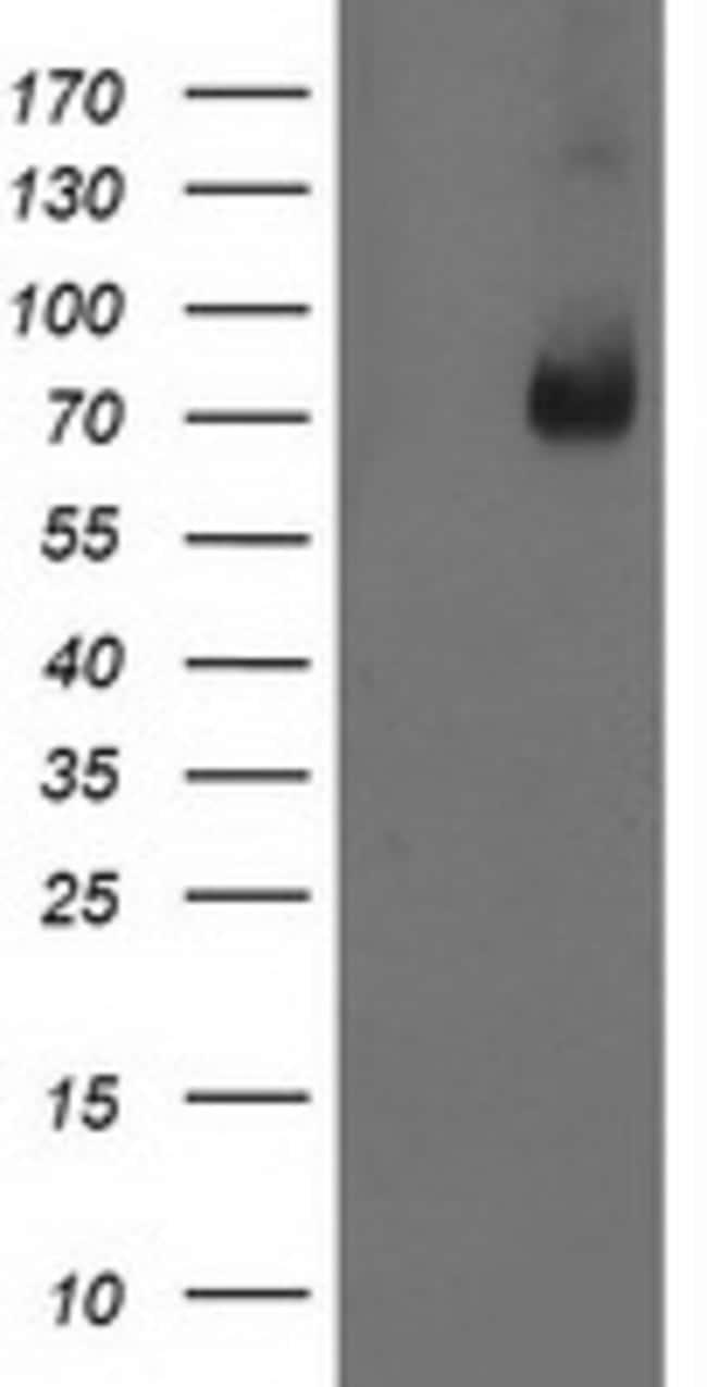 LIMK1 Mouse anti-Human, Clone: OTI8B2, liquid, TrueMAB  100 µL; Unconjugated