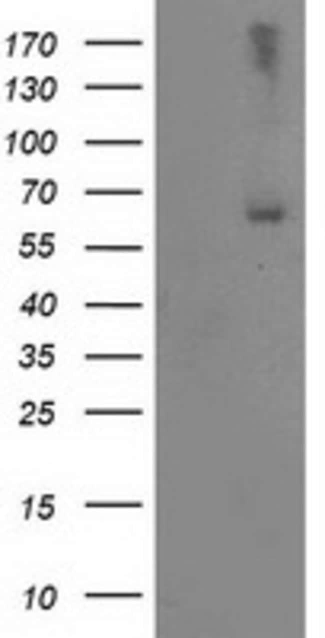 LIMK1 Mouse anti-Human, Clone: OTI3A3, liquid, TrueMAB  100 µL; Unconjugated