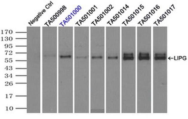 LIPG Mouse anti-Human, Clone: OTI3G7, liquid, TrueMAB  100 µL; Unconjugated