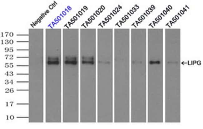 LIPG Mouse anti-Human, Clone: OTI6E11, liquid, TrueMAB  100 µL; Unconjugated