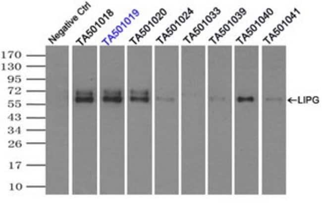 LIPG Mouse anti-Human, Clone: OTI9F2, liquid, TrueMAB  100 µL; Unconjugated
