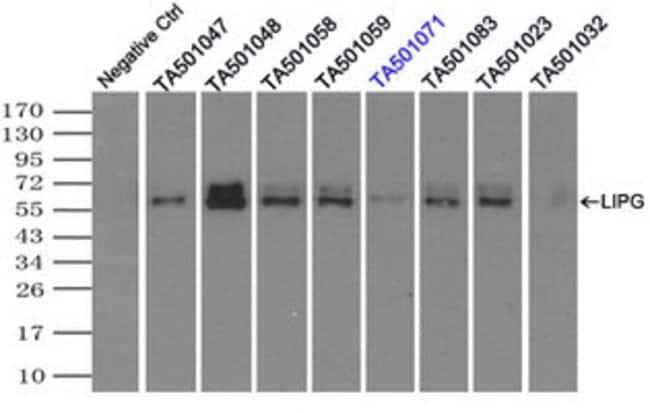 LIPG Mouse anti-Human, Clone: OTI6B11, liquid, TrueMAB  100 µL; Unconjugated