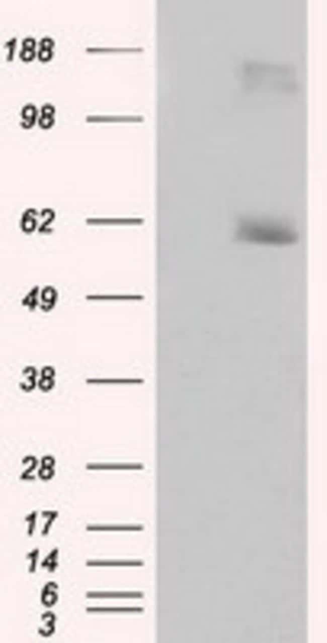 LIPG Mouse anti-Human, Clone: OTI2H10, liquid, TrueMAB  100 µL; Unconjugated