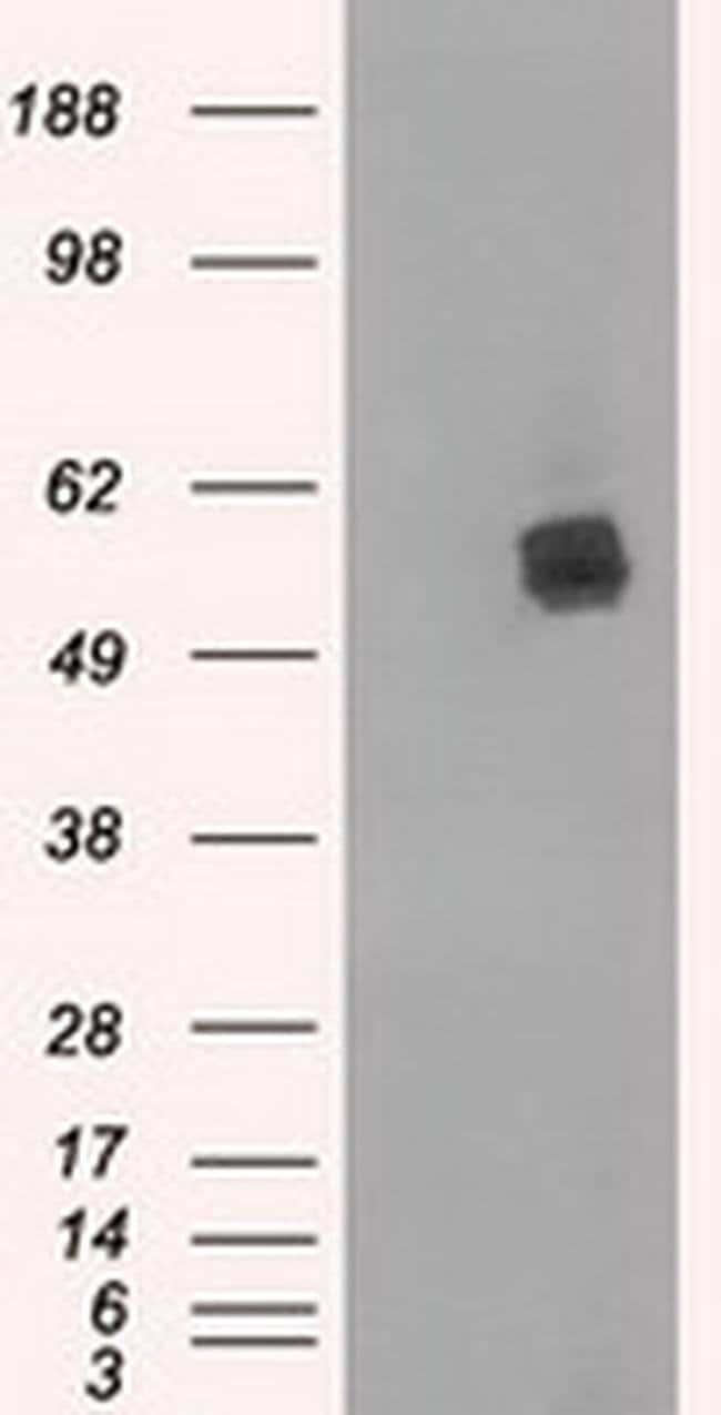 LIPG Mouse anti-Human, Clone: OTI5C3, liquid, TrueMAB  100 µL; Unconjugated