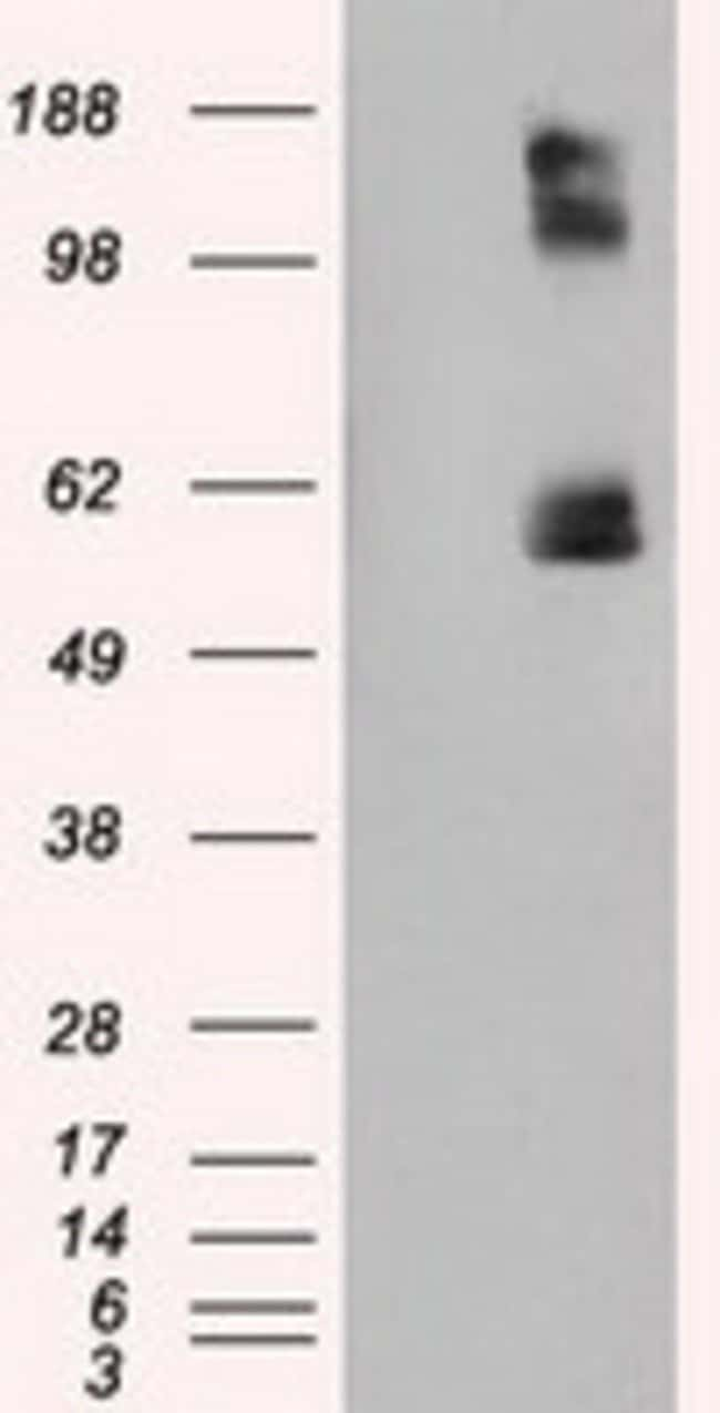 LIPG Mouse anti-Human, Clone: OTI3C4, liquid, TrueMAB  100 µL; Unconjugated