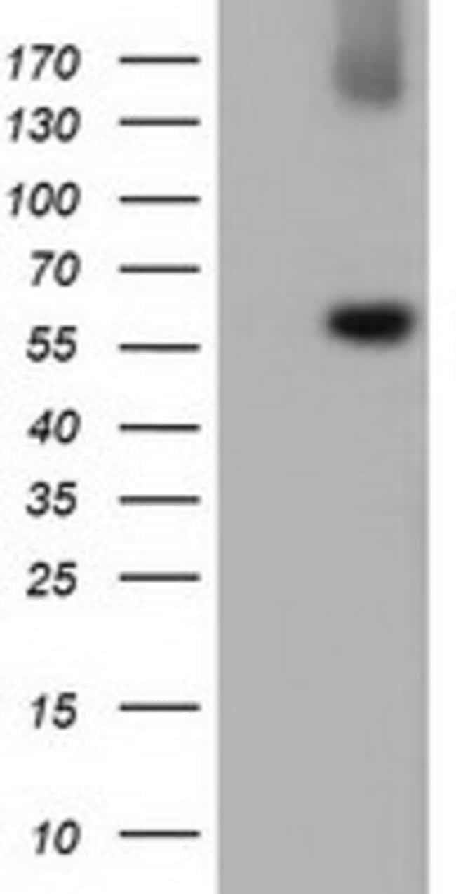 LIPG Mouse anti-Human, Clone: OTI1E3, liquid, TrueMAB  100 µL; Unconjugated