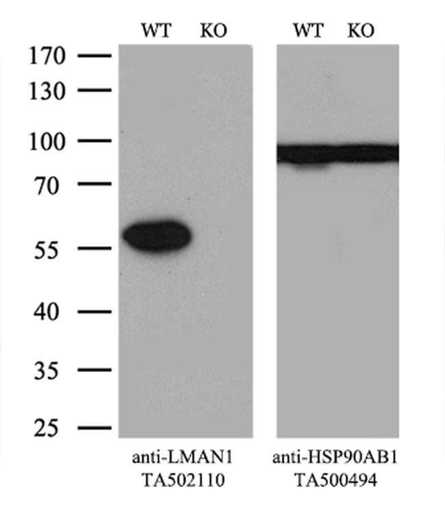 LMAN1 Mouse anti-Human, Clone: OTI2B10, liquid, TrueMAB  100 µL; Unconjugated