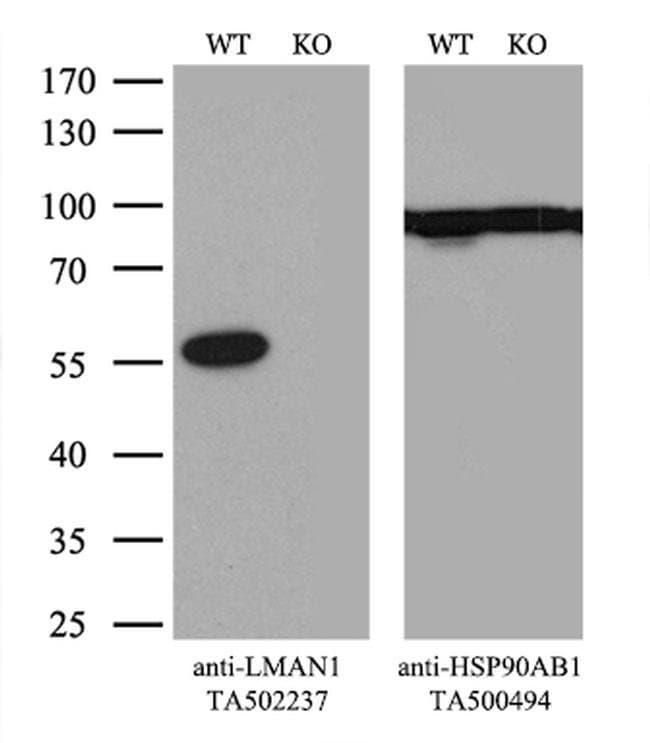 LMAN1 Mouse anti-Human, Clone: OTI1C5, liquid, TrueMAB  100 µL; Unconjugated