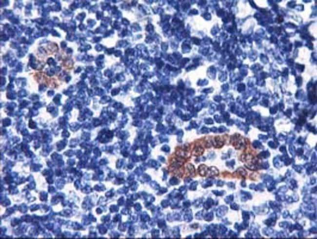 LMCD1 Mouse anti-Human, Clone: OTI1H5, liquid, TrueMAB  100 µL; Unconjugated