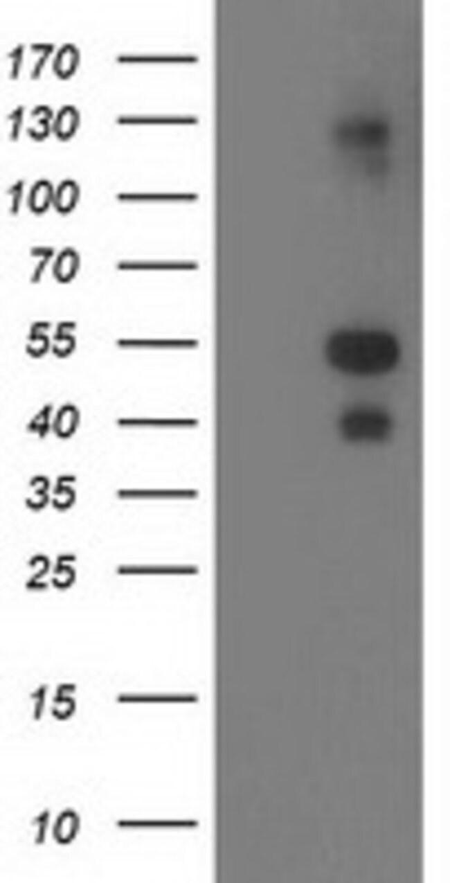 LMCD1 Mouse anti-Human, Clone: OTI2F12, liquid, TrueMAB  100 µL; Unconjugated