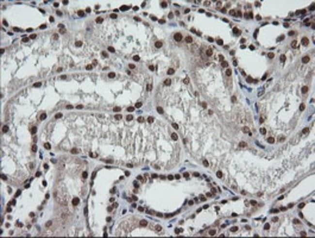 LMO2 Mouse anti-Human, Clone: OTI1G10, liquid, TrueMAB  100 µL; Unconjugated
