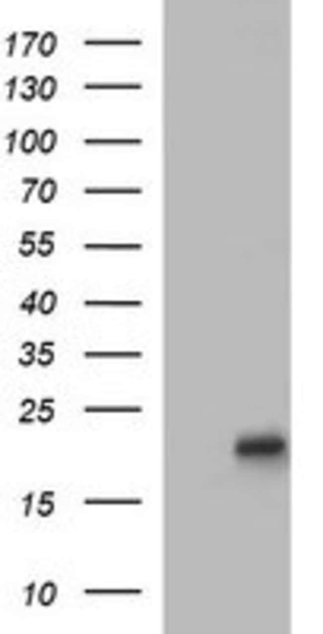 LMO2 Mouse anti-Human, Clone: OTI1D7, liquid, TrueMAB  100 µL; Unconjugated