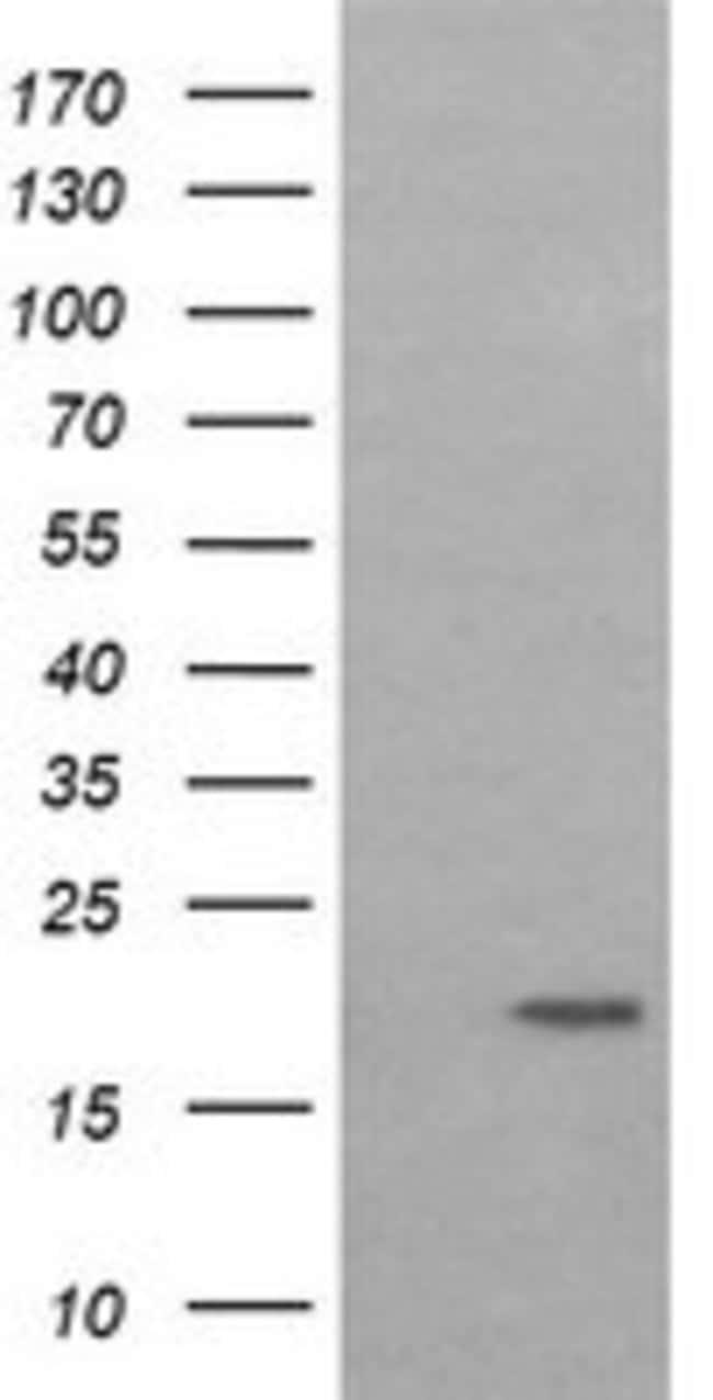 LMO2 Mouse anti-Human, Clone: OTI1C8, liquid, TrueMAB  100 µL; Unconjugated