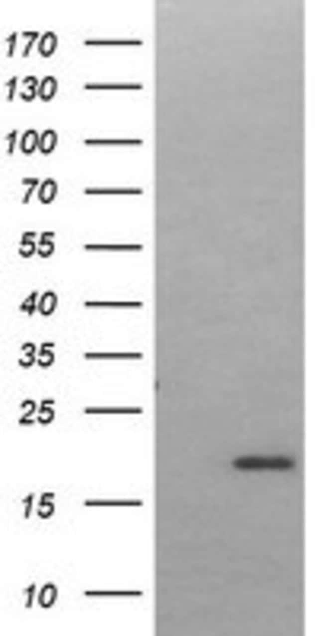 LMO2 Mouse anti-Human, Clone: OTI2D7, liquid, TrueMAB  100 µL; Unconjugated