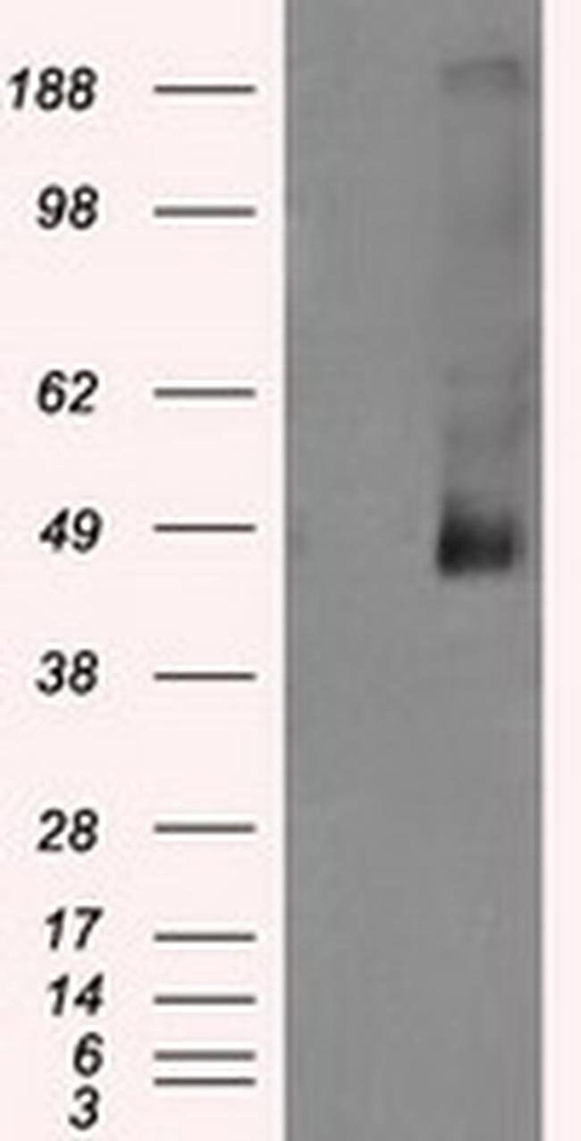 LOX Mouse anti-Human, Clone: OTI3C3, liquid, TrueMAB  100 µL; Unconjugated