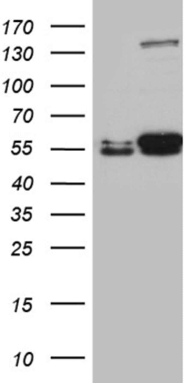 LOX Mouse anti-Human, Clone: OTI9B5, liquid, TrueMAB  100 µL; Unconjugated