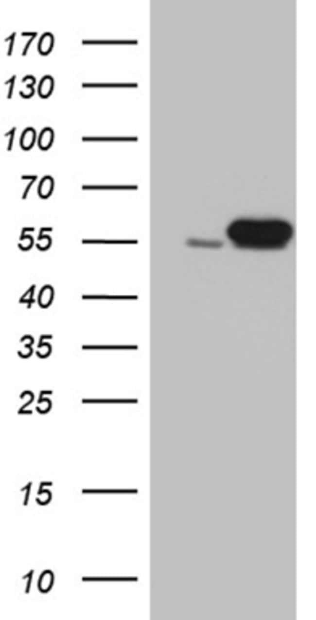 LOX Mouse anti-Human, Clone: OTI7E6, liquid, TrueMAB  100 µL; Unconjugated
