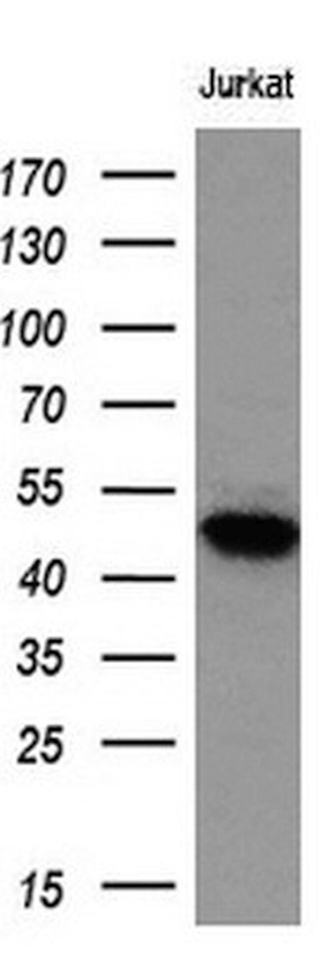 LOX Mouse anti-Human, Clone: OTI6B7, liquid, TrueMAB  100 µL; Unconjugated