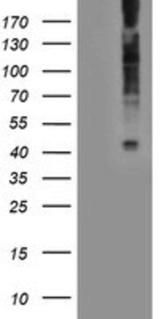 LPAR1 Mouse anti-Human, Clone: OTI1G6, liquid, TrueMAB  100 µL; Unconjugated