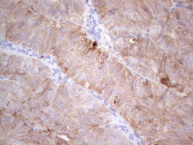 LPIN1 Mouse anti-Human, Clone: OTI7F5, lyophilized, TrueMAB  100 µg;