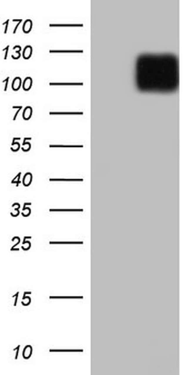 LPIN3 Mouse anti-Human, Clone: OTI3H3, lyophilized, TrueMAB  100 µg;