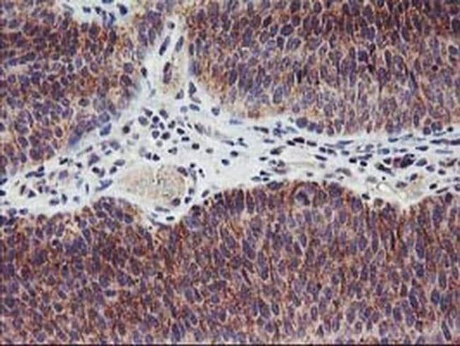 LPL Mouse anti-Human, Clone: OTI3C8, liquid, TrueMAB  100 µL; Unconjugated
