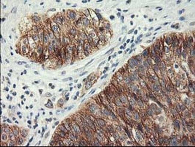 LPL Mouse anti-Human, Clone: OTI3A10, liquid, TrueMAB  100 µL; Unconjugated