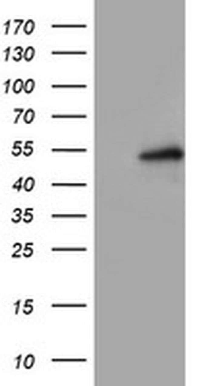 LPL Mouse anti-Human, Clone: OTI3F9, liquid, TrueMAB  100 µL; Unconjugated