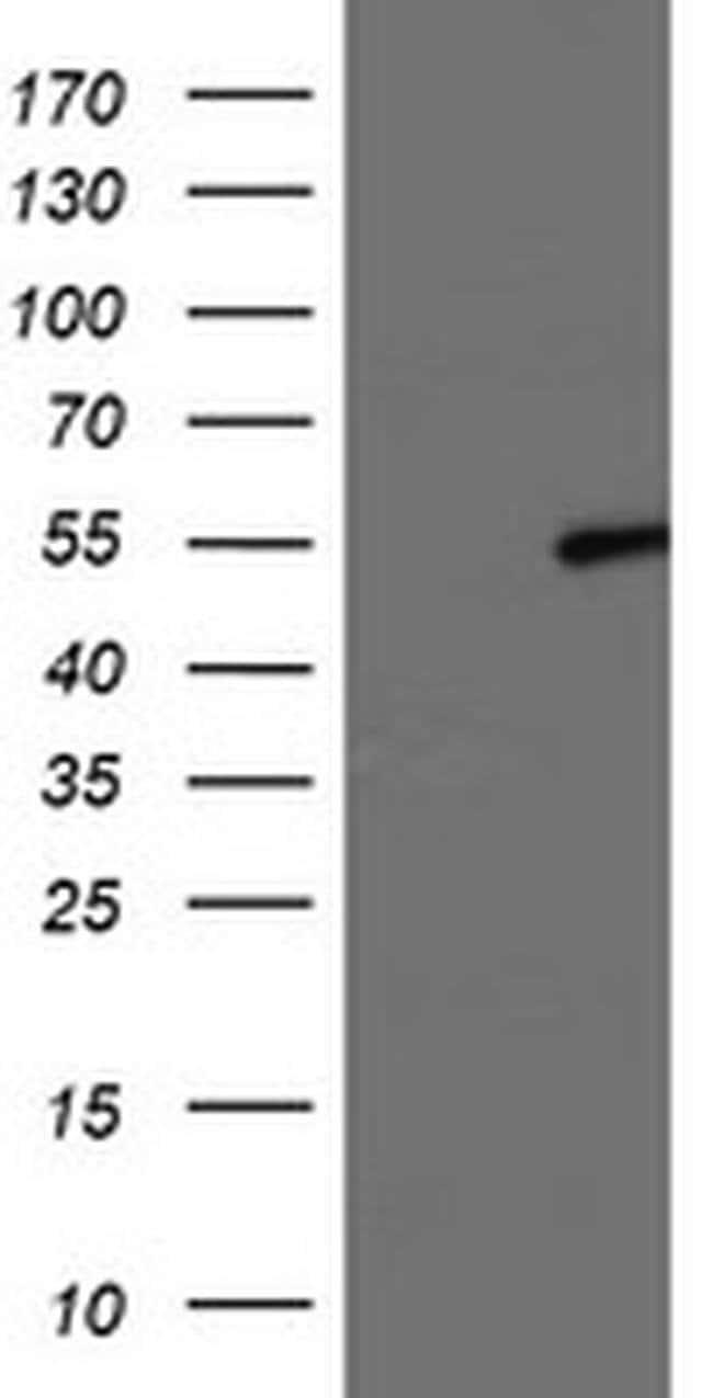 LPL Mouse anti-Human, Clone: OTI4H3, liquid, TrueMAB  100 µL; Unconjugated