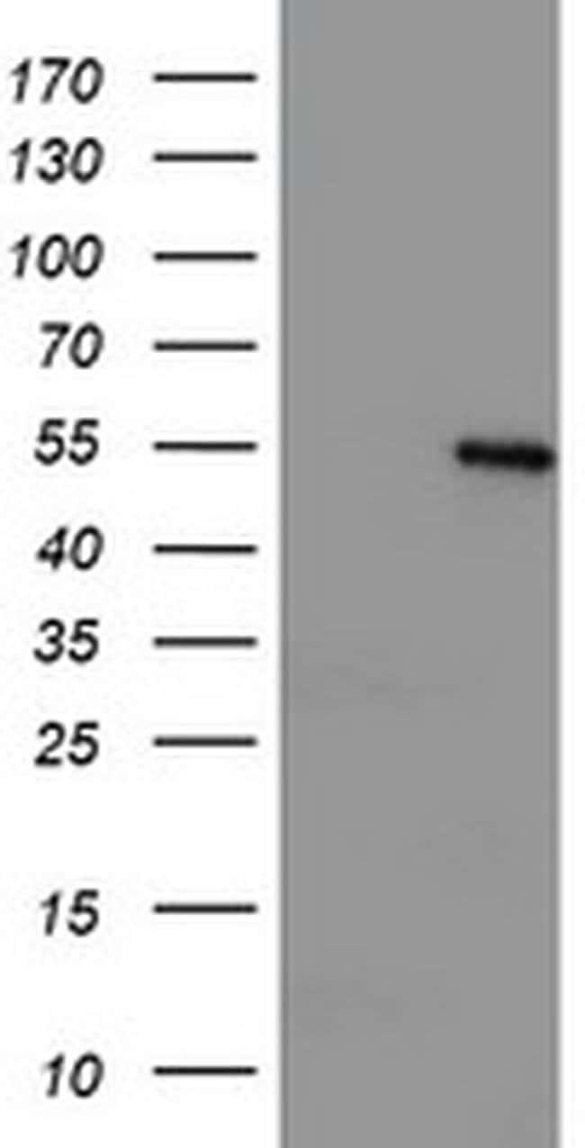 LPL Mouse anti-Human, Clone: OTI2G8, liquid, TrueMAB  100 µL; Unconjugated