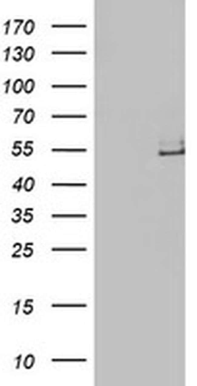 LPL Mouse anti-Human, Clone: OTI6A10, liquid, TrueMAB  100 µL; Unconjugated