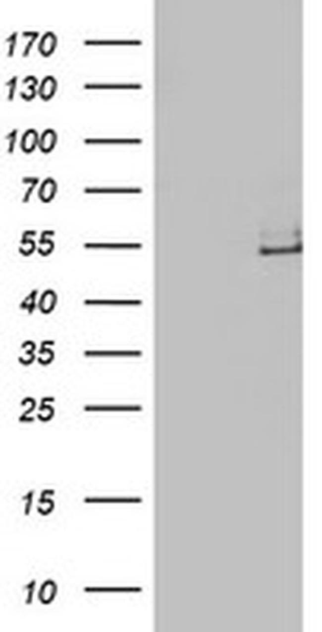 LPL Mouse anti-Human, Clone: OTI4F6, liquid, TrueMAB  100 µL; Unconjugated