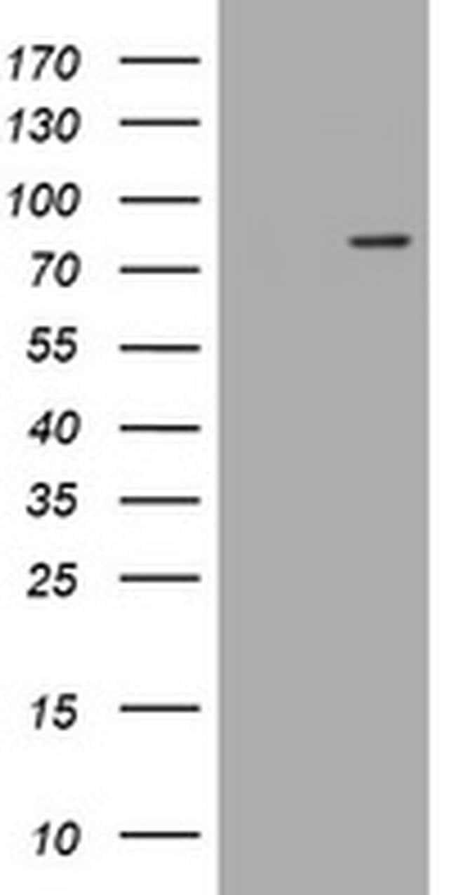 LRCH4 Mouse anti-Human, Clone: OTI1F8, liquid, TrueMAB  100 µL; Unconjugated