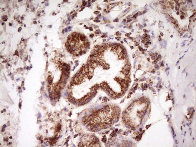LRRC6 Mouse anti-Human, Clone: OTI7E9, lyophilized, TrueMAB  100 µg;