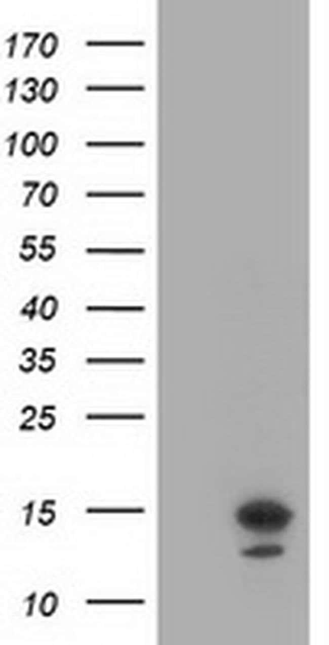 LSM1 Mouse anti-Human, Clone: OTI9D7, liquid, TrueMAB  100 µL; Unconjugated