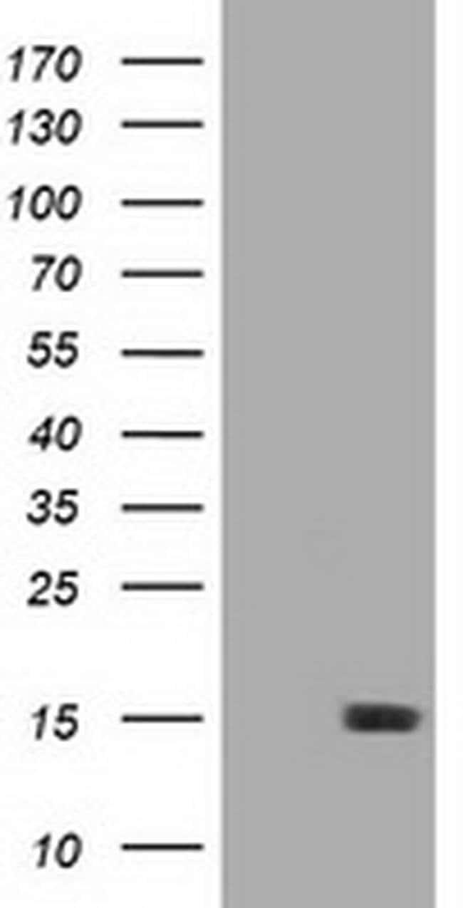 LSM1 Mouse anti-Human, Clone: OTI1A9, liquid, TrueMAB  100 µL; Unconjugated