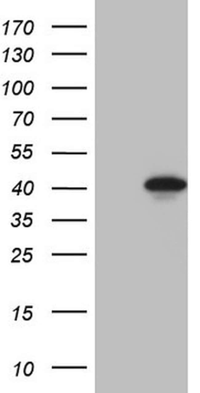 LUZP4 Mouse anti-Human, Clone: OTI3A10, lyophilized, TrueMAB  100 µg;