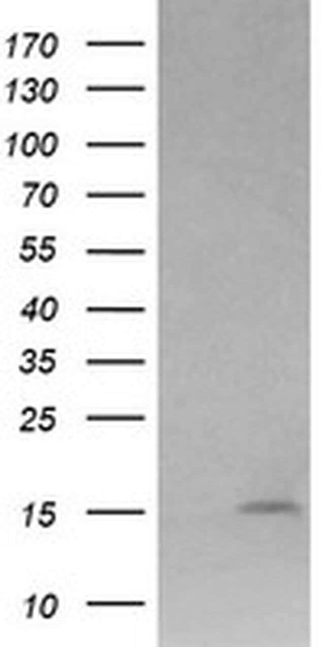 LYZ Mouse anti-Human, Clone: OTI1C9, liquid, TrueMAB  100 µL; Unconjugated