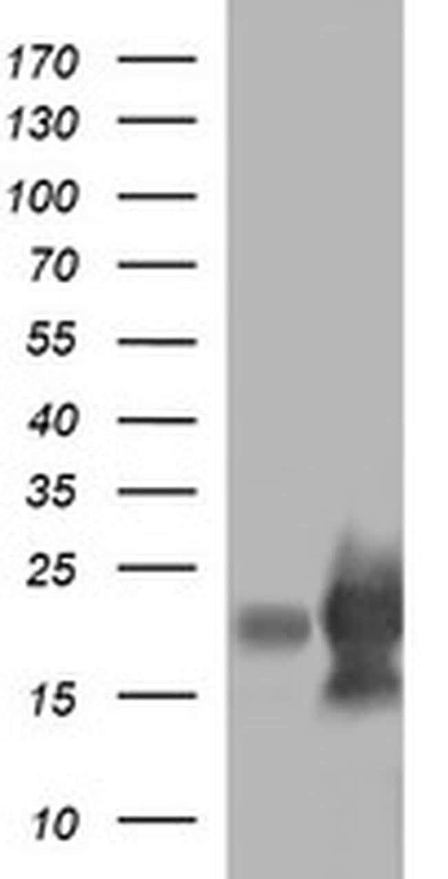 LYZ Mouse anti-Human, Clone: OTI2C2, liquid, TrueMAB  100 µL; Unconjugated
