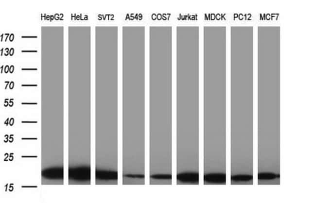 LZIC Mouse anti-Human, Clone: OTI3A7, liquid, TrueMAB  100 µL; Unconjugated