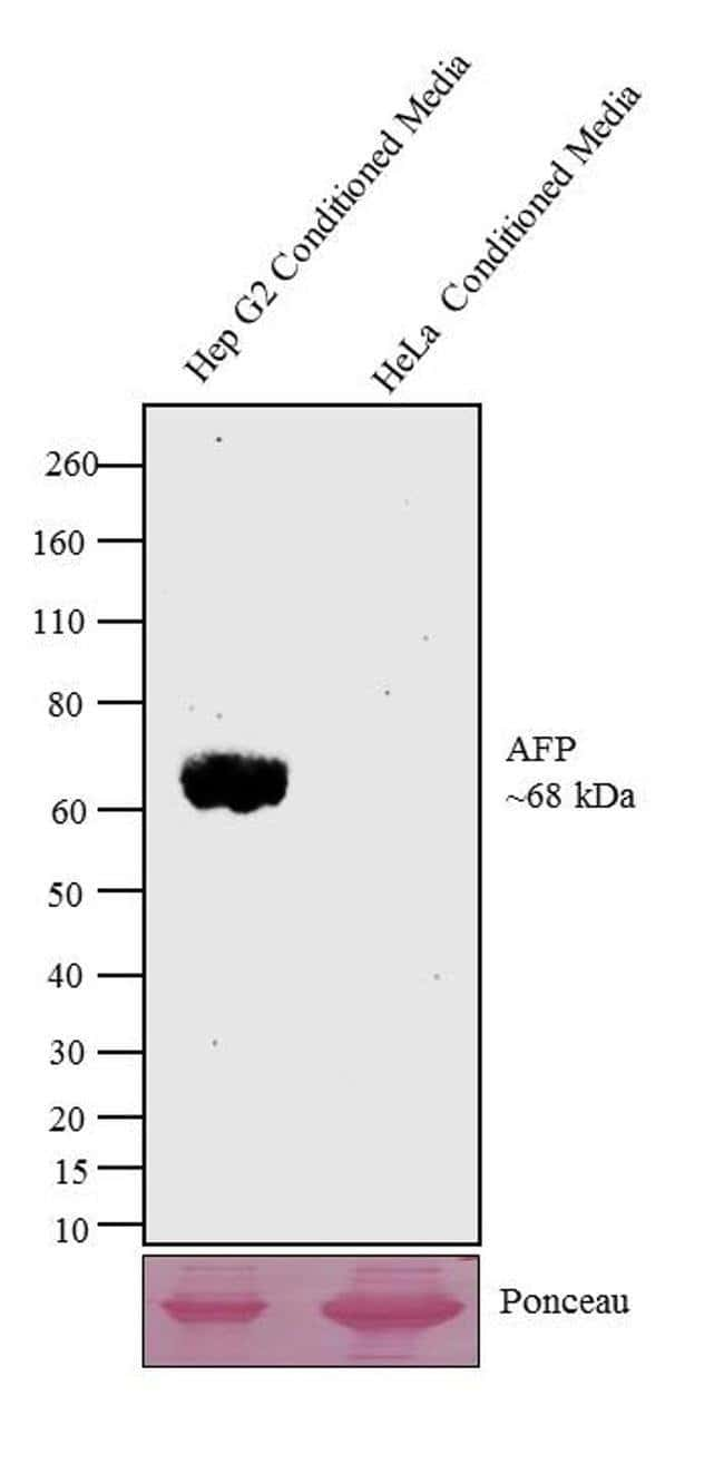 AFP Mouse anti-Human, Clone: AFP-01, Invitrogen 100 μg; Unconjugated:Antibodies