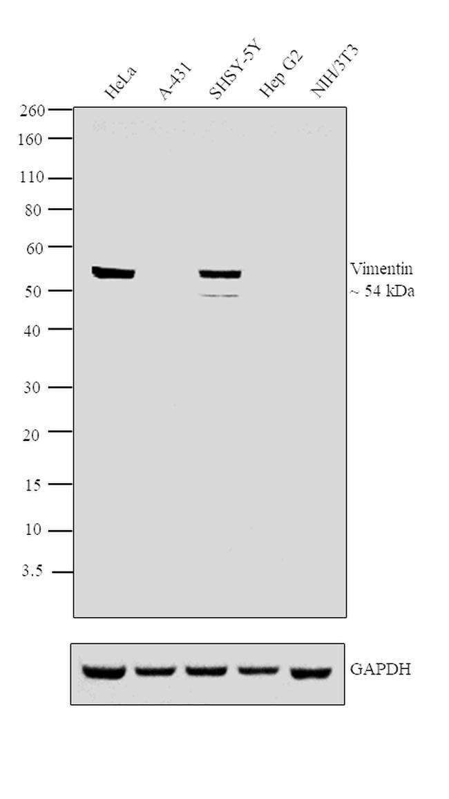 Vimentin Mouse anti-Human, Mouse, Clone: VI-RE/1, Invitrogen 100 µg;